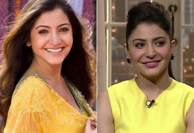 Photo of Top 10 Bollywood Actress Who Turned Ugly to Beautiful 2017