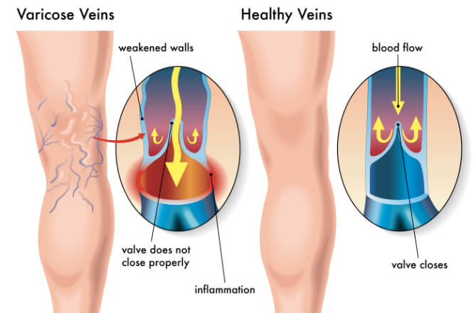 What Is The Best Varicose Veins Treatment In Delhi?