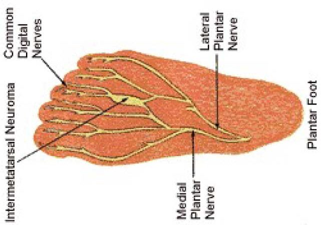 Visit A Foot Doctor For Problems With Feet